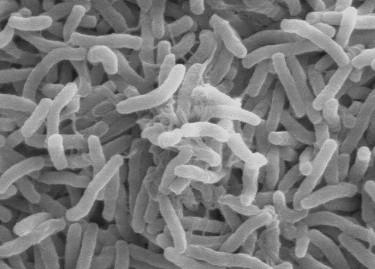 Küba'da kolera salgını