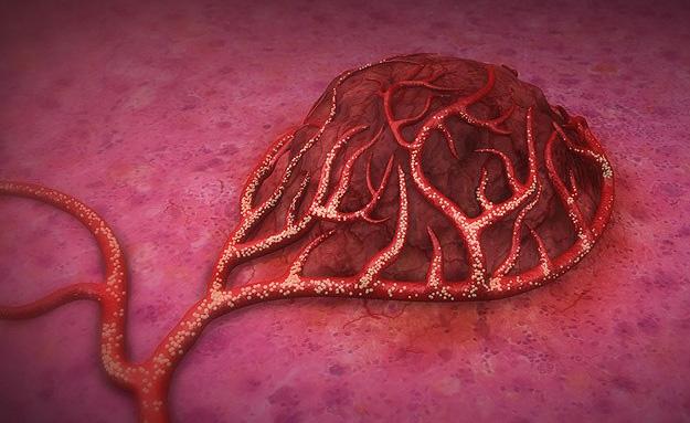 Kanserden ölümlere karşı en etkili yöntemler belirlendi